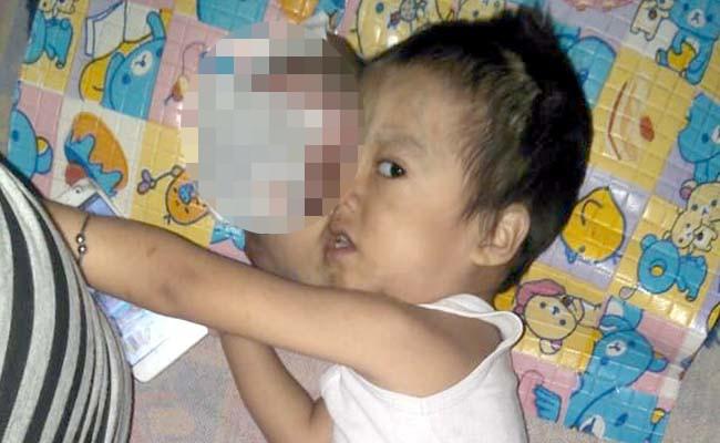 Kisah Haru Seorang Anak Penderita Kanker